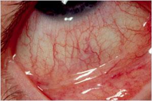 Mevsimsel alerjik konjonktivit