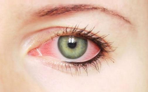 Kuru Göz