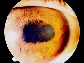 Üveitte Göz Bebeği Yapışıklığı