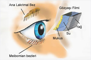 kuru göz nedir?
