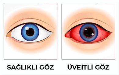 üveitli göz